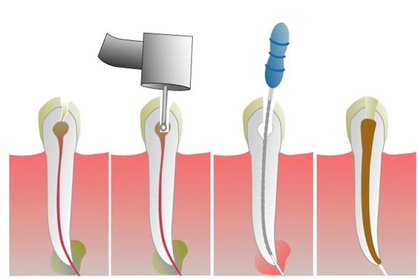 Ce presupune tratamentul abcesului dentar?