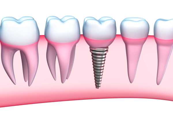 Trei motive pentru care implantul dentar nu trebuie să te îngrijoreze