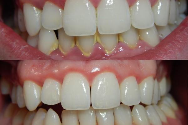 Care sunt cauzele retragerii gingiilor și cum prevenim retragerea acestora?