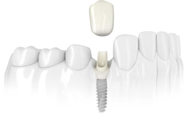 Când apar și cum se manifestă eșecurile implanturilor dentare?